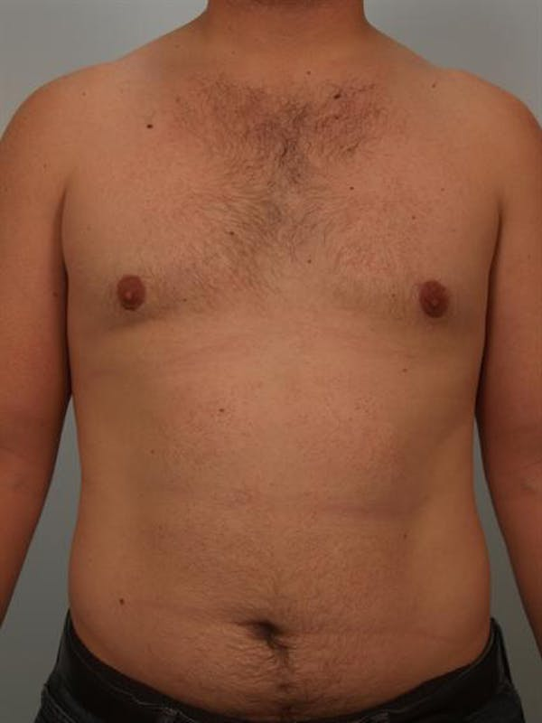 Male Liposuction Gallery - Patient 1310862 - Image 2