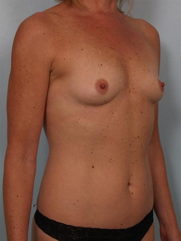 Breast Augmentation Gallery - Patient 1310863 - Image 3