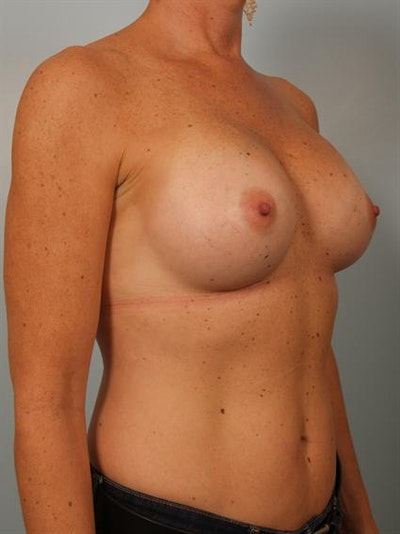 Breast Augmentation Gallery - Patient 1310863 - Image 4