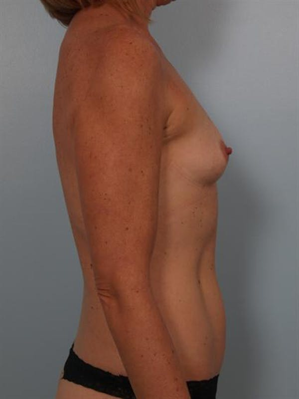 Breast Augmentation Gallery - Patient 1310863 - Image 5