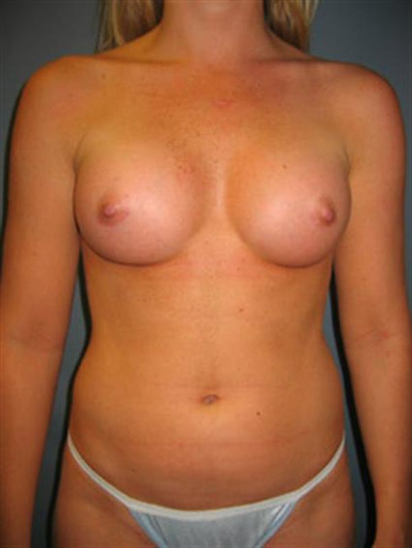 Power Assisted Liposuction Gallery - Patient 1310867 - Image 4