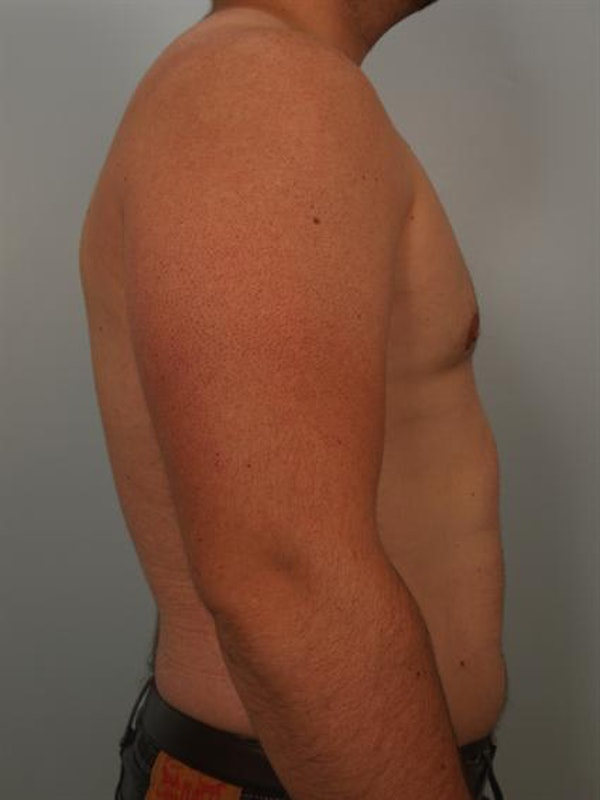 Male Liposuction Gallery - Patient 1310862 - Image 4