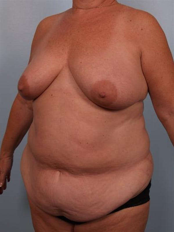 Mommy Makeover Gallery - Patient 1310865 - Image 3