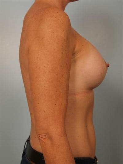Breast Augmentation Gallery - Patient 1310863 - Image 6