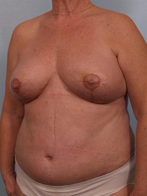 Mommy Makeover Gallery - Patient 1310865 - Image 4