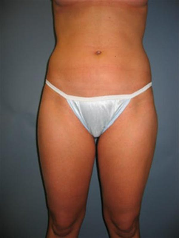 Power Assisted Liposuction Gallery - Patient 1310867 - Image 6
