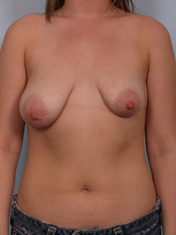 Breast Lift Gallery - Patient 1310864 - Image 1