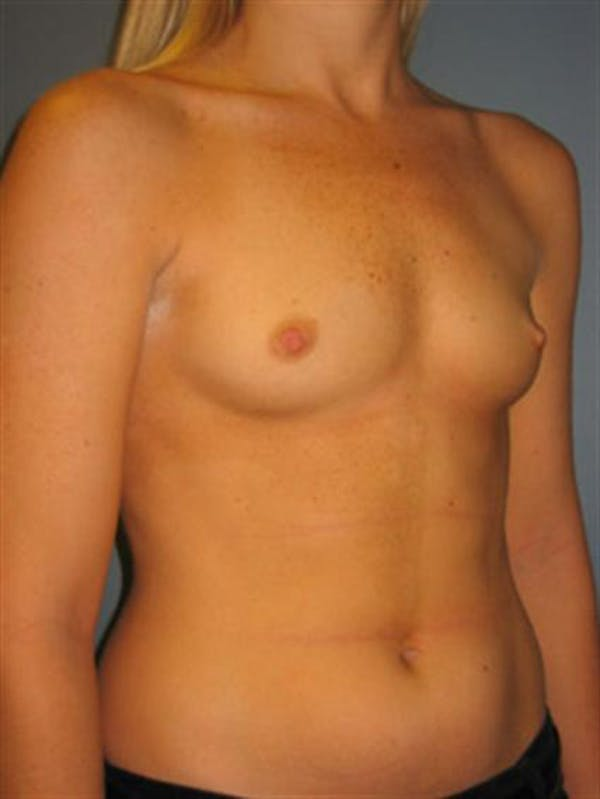 Power Assisted Liposuction Gallery - Patient 1310867 - Image 7