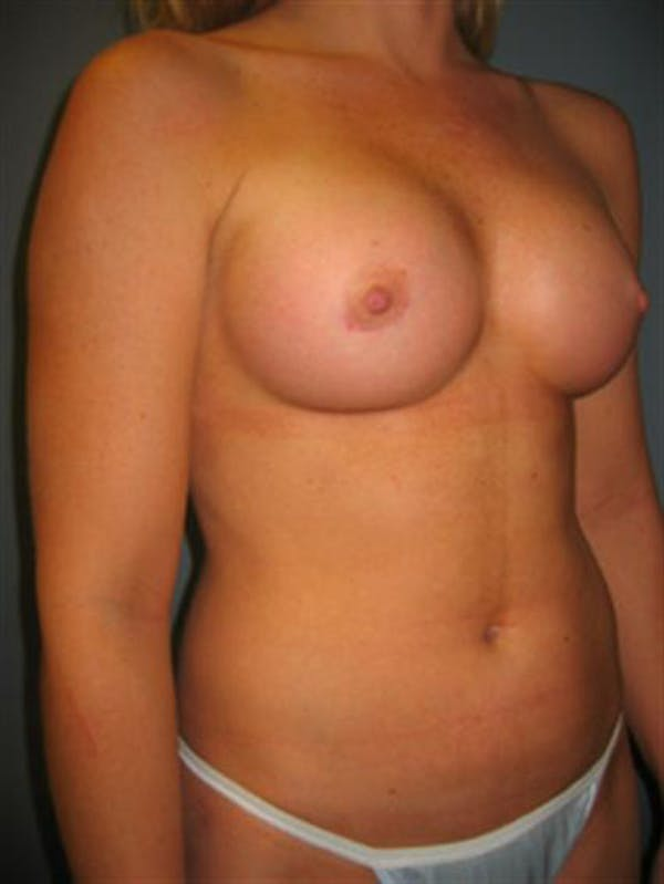Power Assisted Liposuction Gallery - Patient 1310867 - Image 8