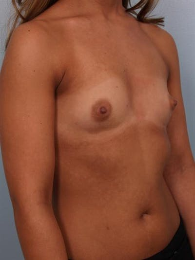 Breast Augmentation Gallery - Patient 1310869 - Image 1