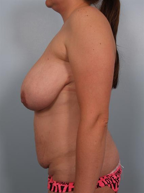 Tummy Tuck Gallery - Patient 1310866 - Image 5