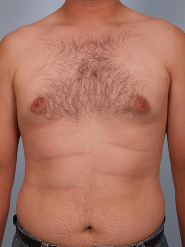 Male Liposuction Gallery - Patient 1310868 - Image 3