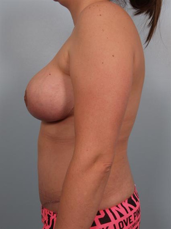 Tummy Tuck Gallery - Patient 1310866 - Image 6
