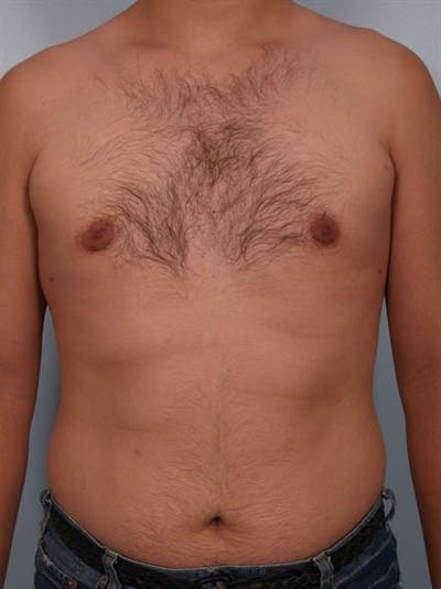 Male Liposuction Gallery - Patient 1310868 - Image 4