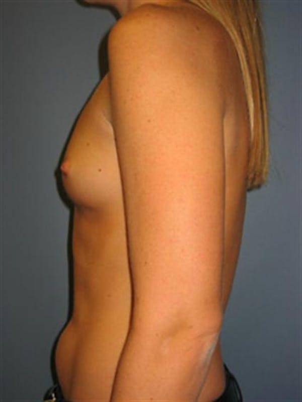 Power Assisted Liposuction Gallery - Patient 1310867 - Image 11
