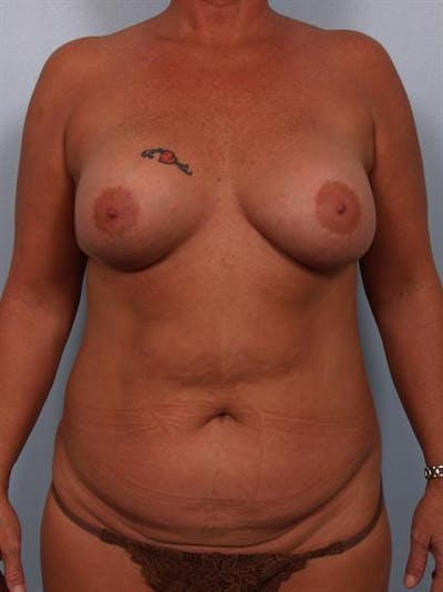 Mommy Makeover Gallery - Patient 1310870 - Image 1