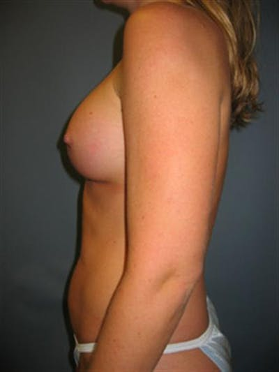 Power Assisted Liposuction Gallery - Patient 1310867 - Image 12