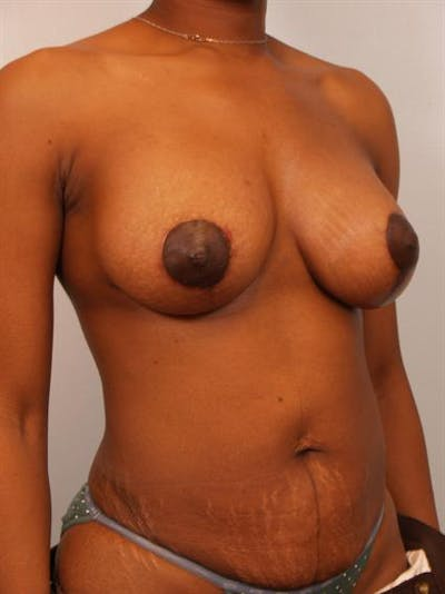 Breast Lift Gallery - Patient 1310871 - Image 4