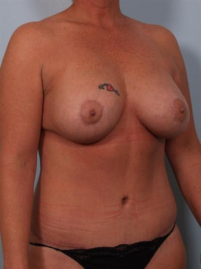 Mommy Makeover Gallery - Patient 1310870 - Image 4