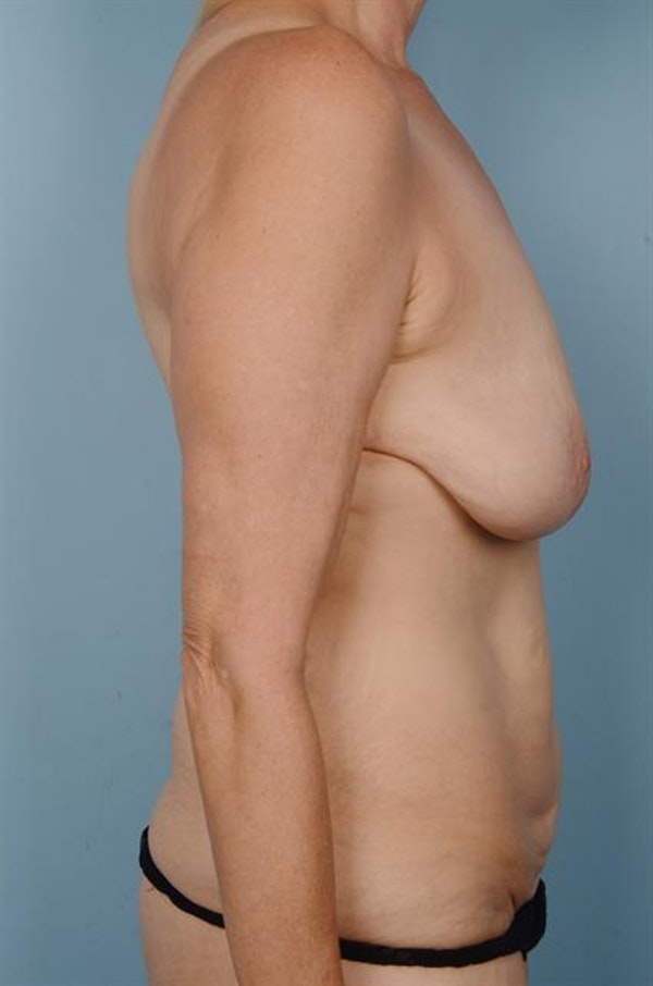 Tummy Tuck Gallery - Patient 1310872 - Image 5
