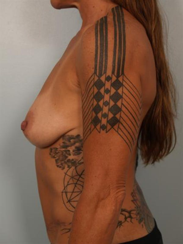 Power Assisted Liposuction Gallery - Patient 1310873 - Image 3