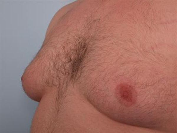 Male Liposuction Gallery - Patient 1310874 - Image 1