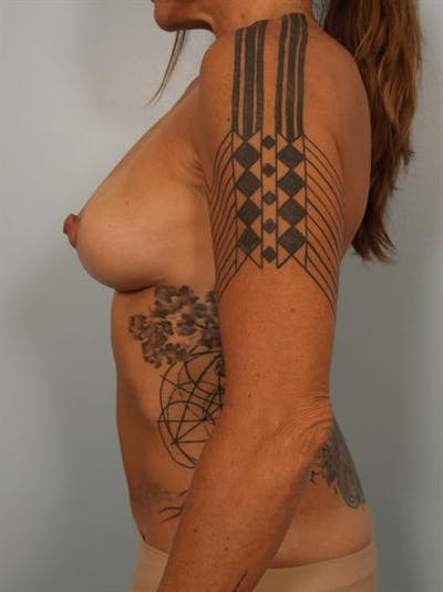 Power Assisted Liposuction Gallery - Patient 1310873 - Image 4