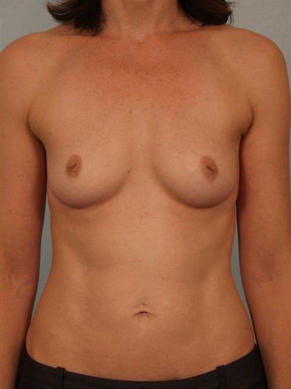 Breast Augmentation Gallery - Patient 1310878 - Image 1