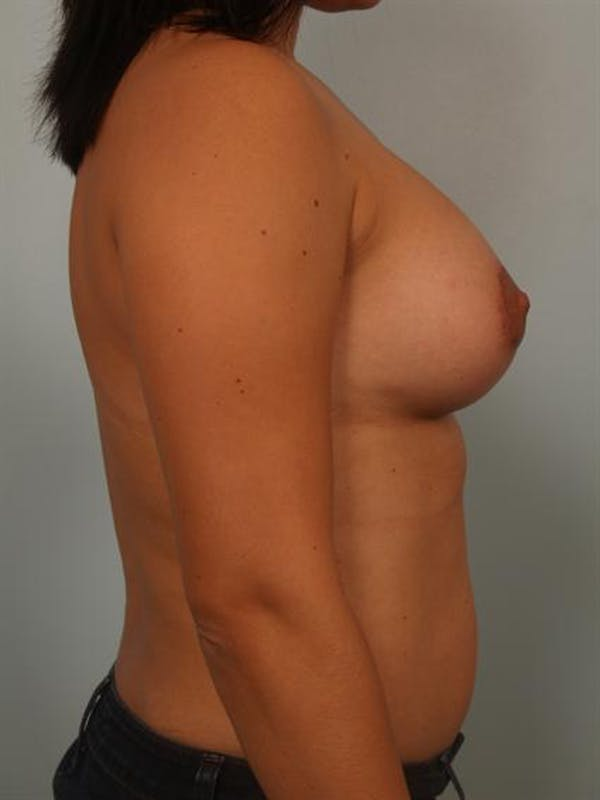 Breast Lift Gallery - Patient 1310875 - Image 4