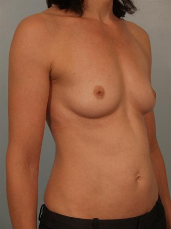 Breast Augmentation Gallery - Patient 1310878 - Image 3