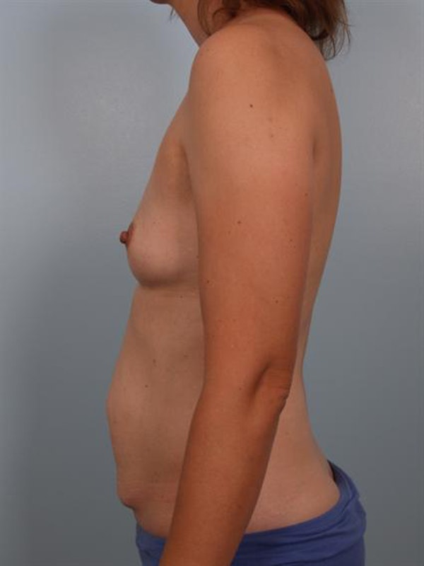 Mommy Makeover Gallery - Patient 1310876 - Image 3