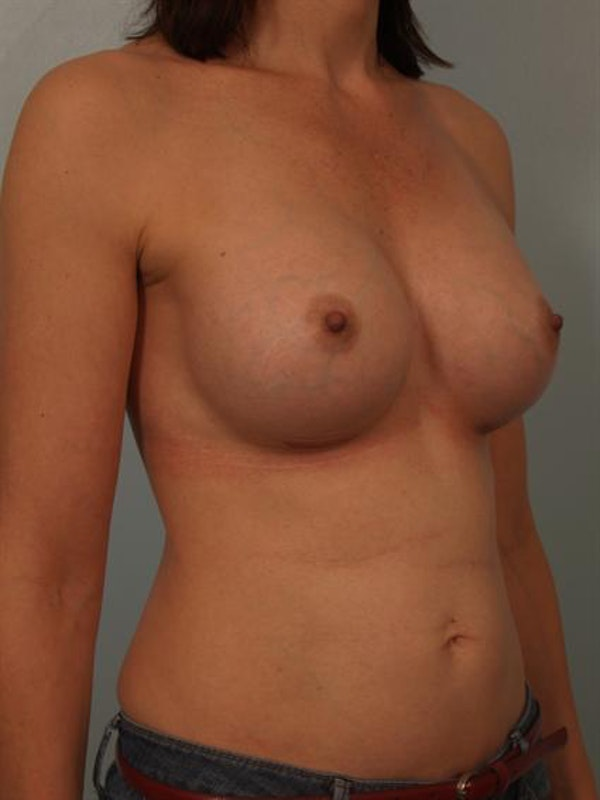 Breast Augmentation Gallery - Patient 1310878 - Image 4