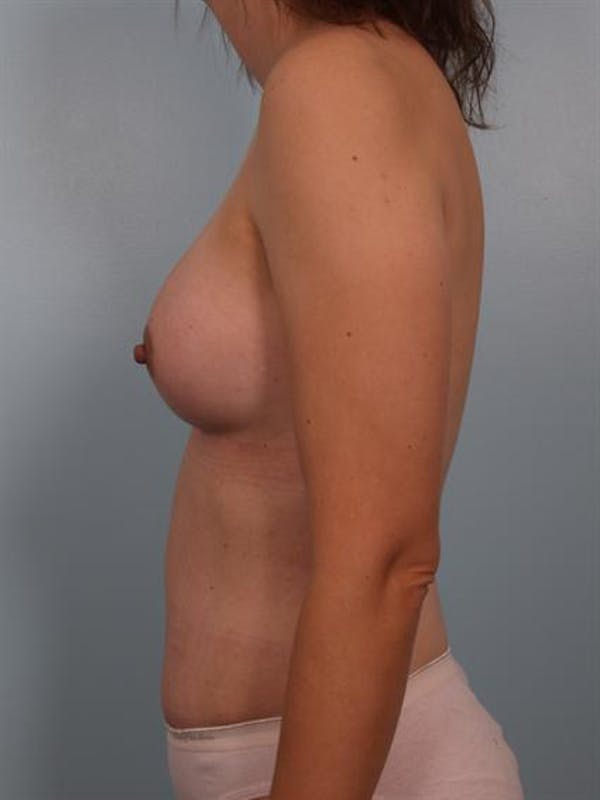 Mommy Makeover Gallery - Patient 1310876 - Image 4