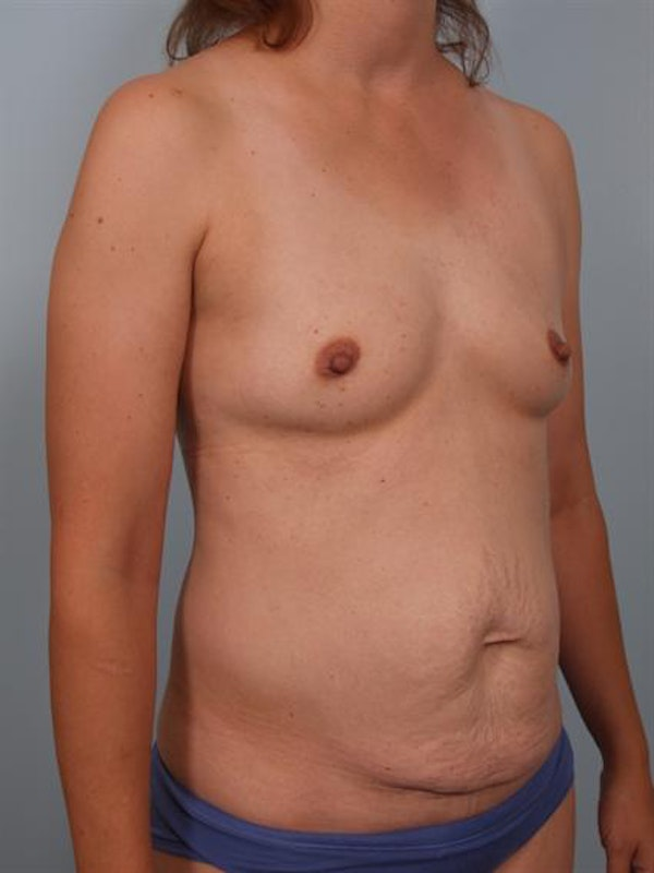 Mommy Makeover Gallery - Patient 1310876 - Image 5