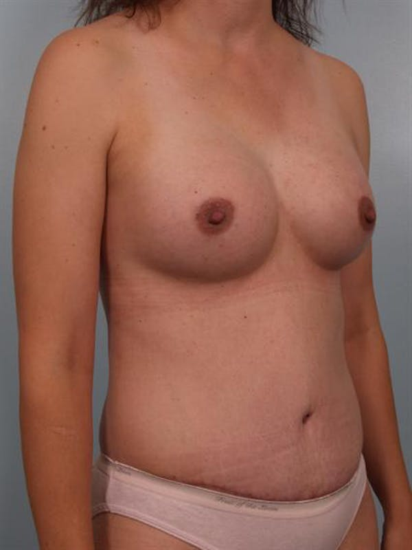 Mommy Makeover Gallery - Patient 1310876 - Image 6