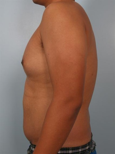 Male Liposuction Gallery - Patient 1310880 - Image 1
