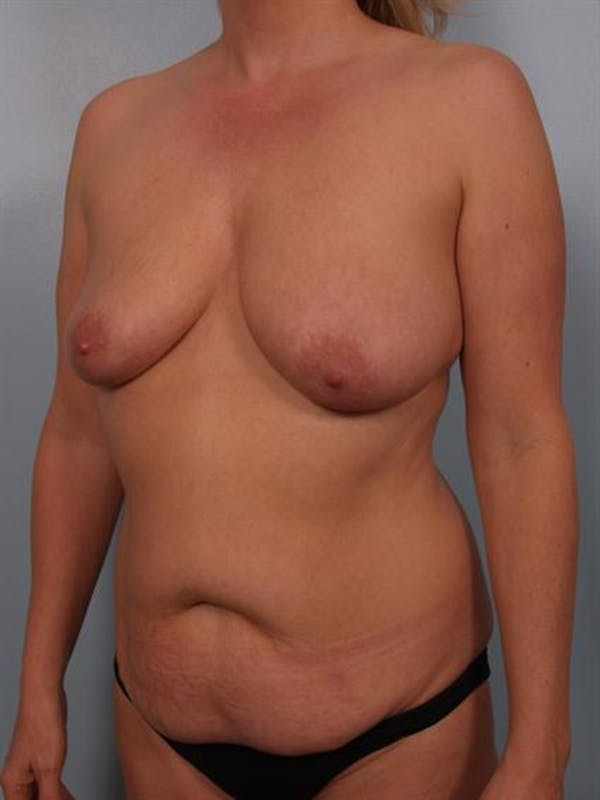 Mommy Makeover Gallery - Patient 1310882 - Image 3