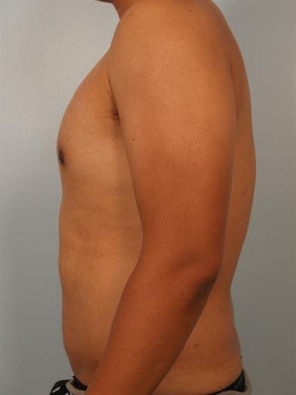 Male Liposuction Gallery - Patient 1310880 - Image 2