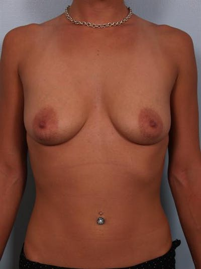 Breast Lift Gallery - Patient 1310881 - Image 1