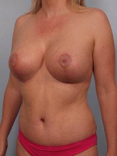Mommy Makeover Gallery - Patient 1310882 - Image 4