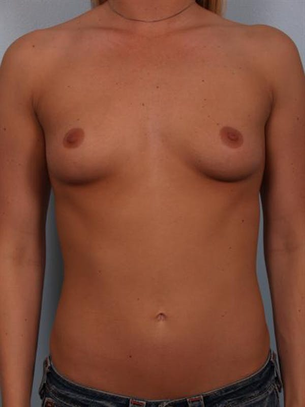Breast Augmentation Gallery - Patient 1310885 - Image 1