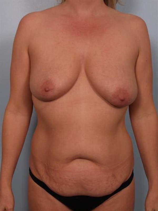 Mommy Makeover Gallery - Patient 1310882 - Image 1