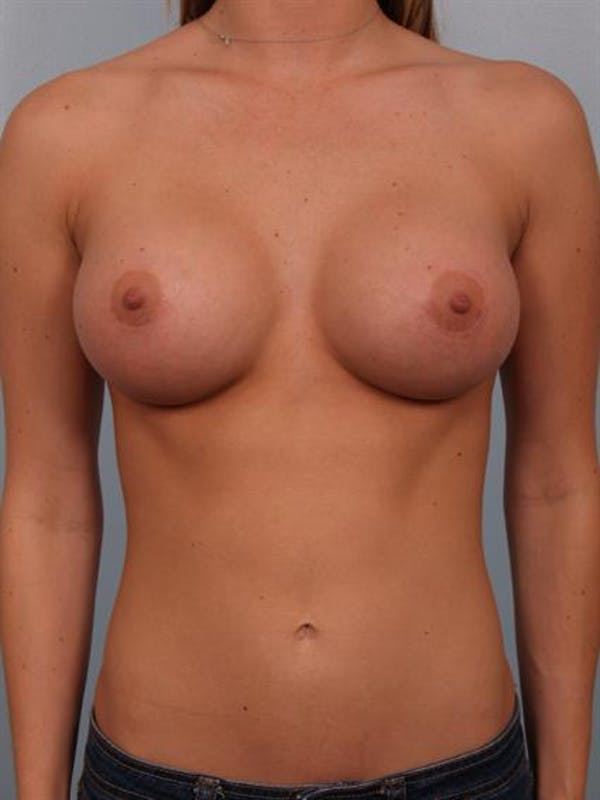 Breast Augmentation Gallery - Patient 1310885 - Image 2