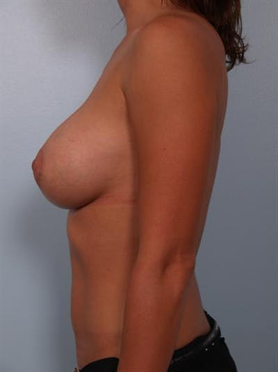 Breast Lift Gallery - Patient 1310881 - Image 4