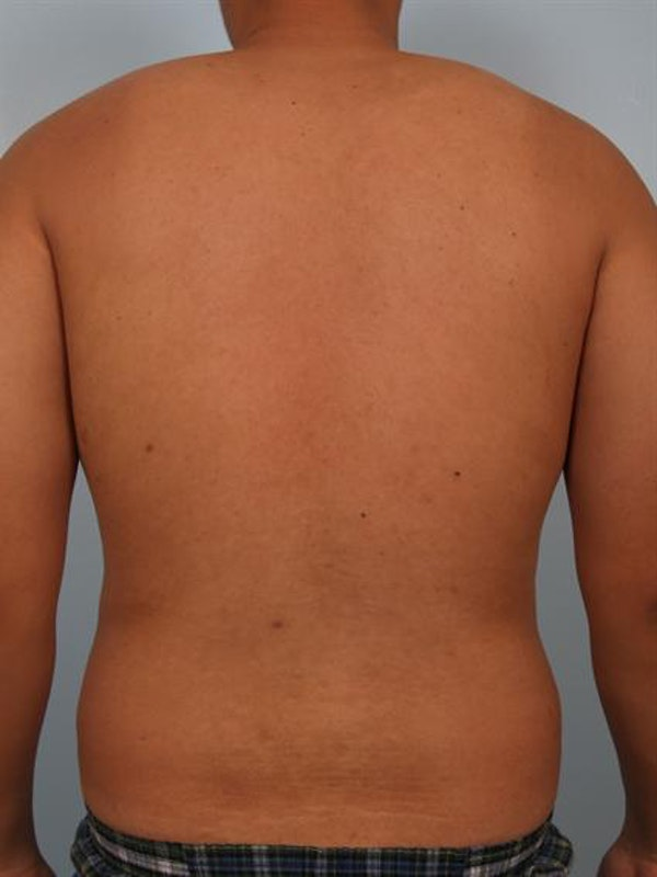 Male Liposuction Gallery - Patient 1310880 - Image 5