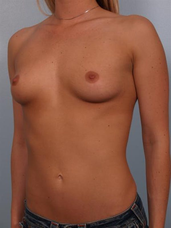 Breast Augmentation Gallery - Patient 1310885 - Image 3