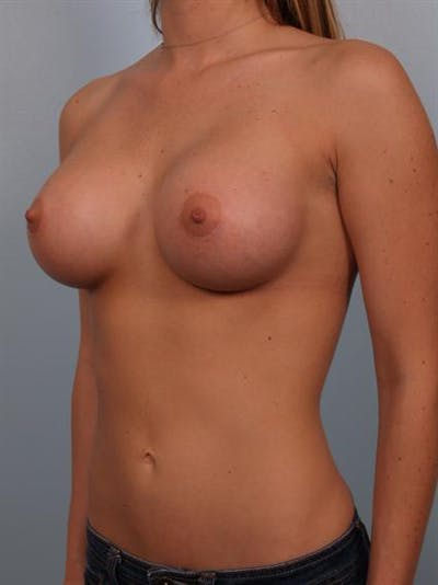 Breast Augmentation Gallery - Patient 1310885 - Image 4