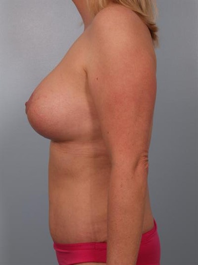Mommy Makeover Gallery - Patient 1310882 - Image 6