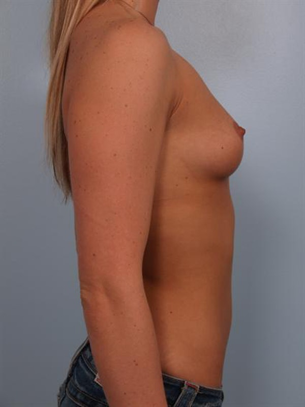 Breast Augmentation Gallery - Patient 1310885 - Image 5