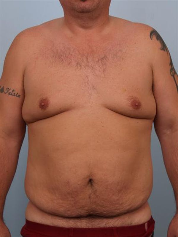 Male Liposuction Gallery - Patient 1310886 - Image 1